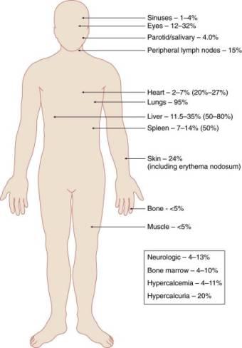 Sarcoidosis Mpkb