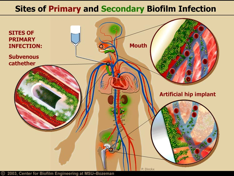Images and illustrations of biofilm bacteria