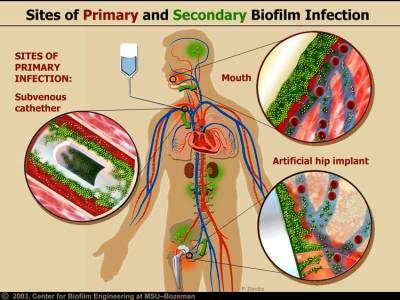 Biofilm bacteria (MPKB)