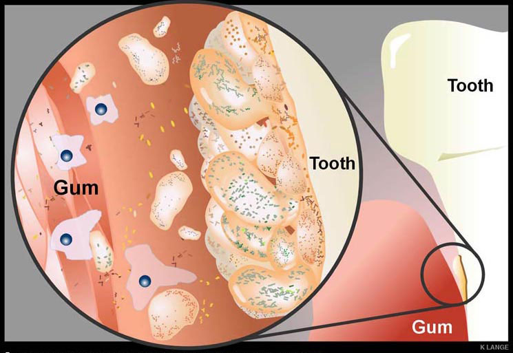 Role in gingivitis and periodontal disease