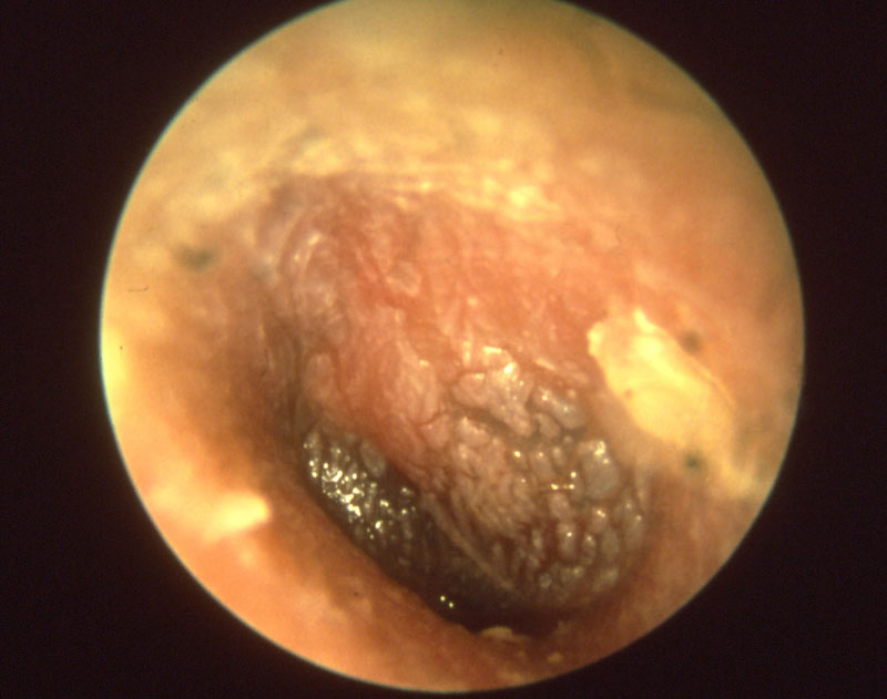 Otitis media, or inflammation of the inner ear, is caused by biofilm.